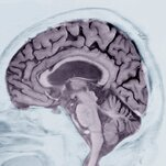 Alzheimer's Prediction May Be Found in Writing Tests